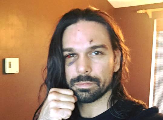 Le combattant sorelois a subi une fracture à un os près de l'œil. | Photo: tirée de Facebook