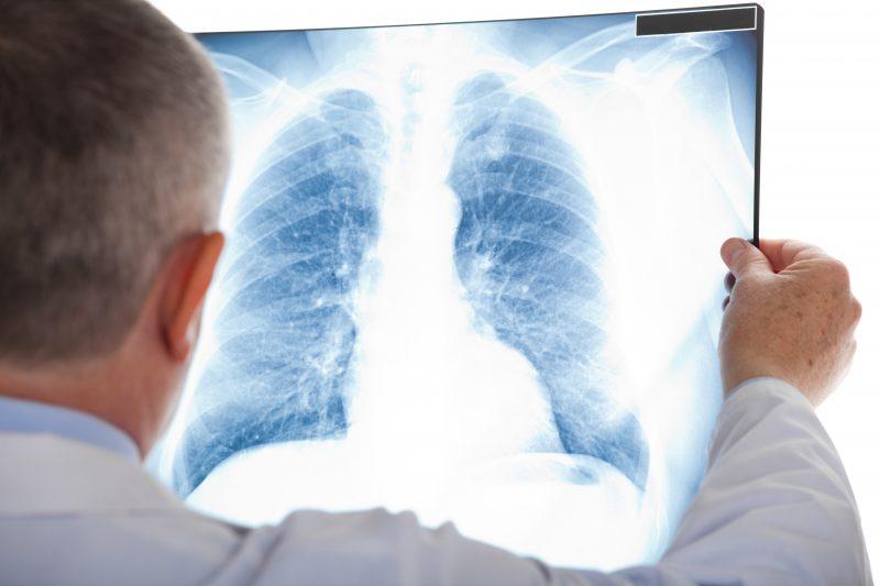 La cancer du poumon est relié à 85% du temps au tabagsime. | depositphotos.com