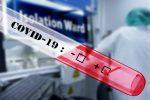 Deux jours de clinique sans rendez-vous pour le dépistage de la COVID-19